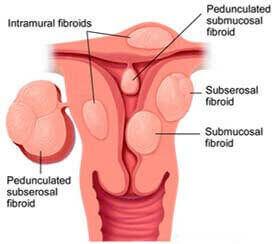 Schematic of Fibroids in the Uterus